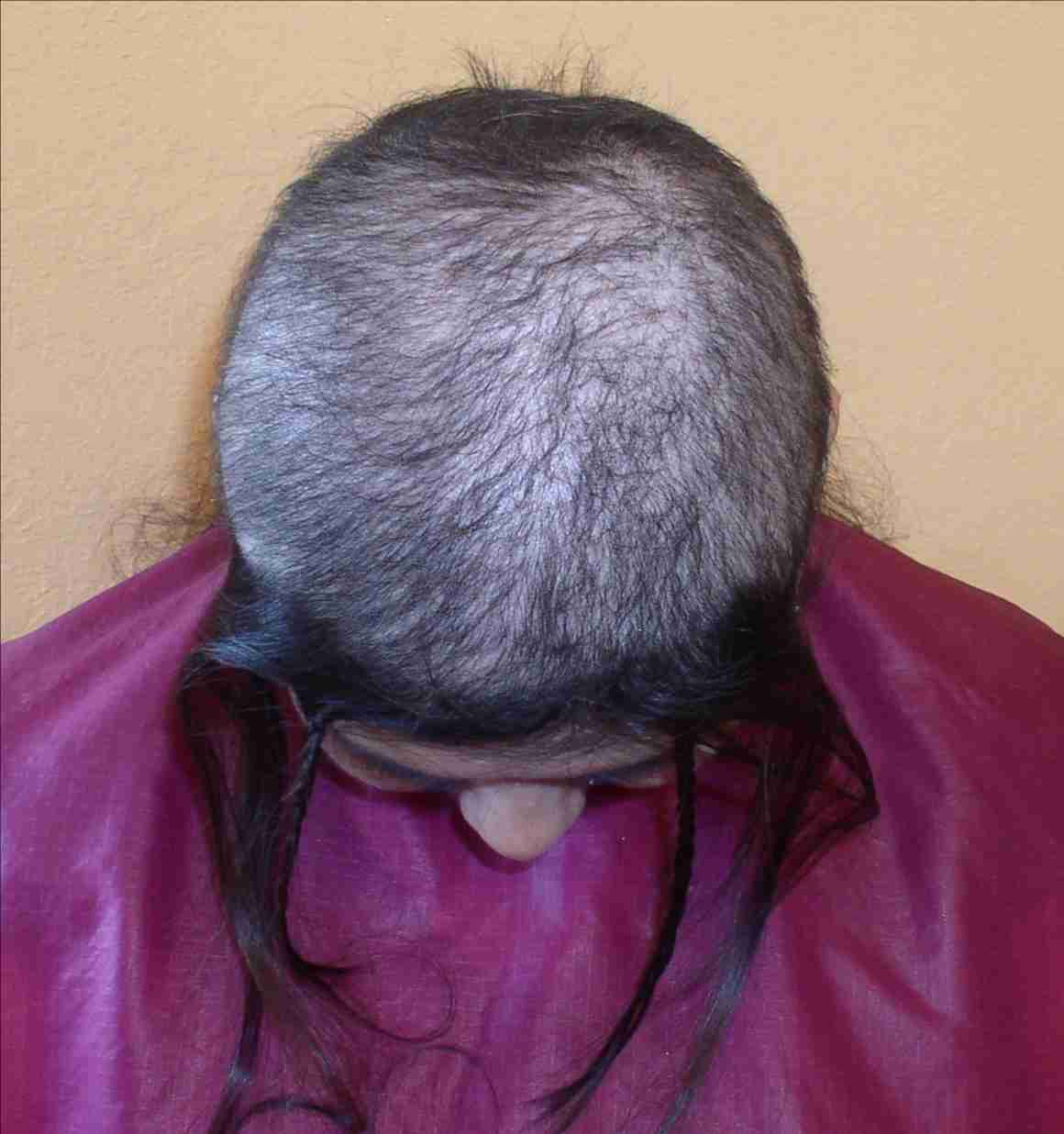 Hair Loss Do To Surgery Cancer And Alopecia Net Weave